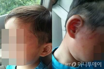 폭행 피해를 당한 어린이의 얼굴에 난 상처 /사진=피해자 측 제공