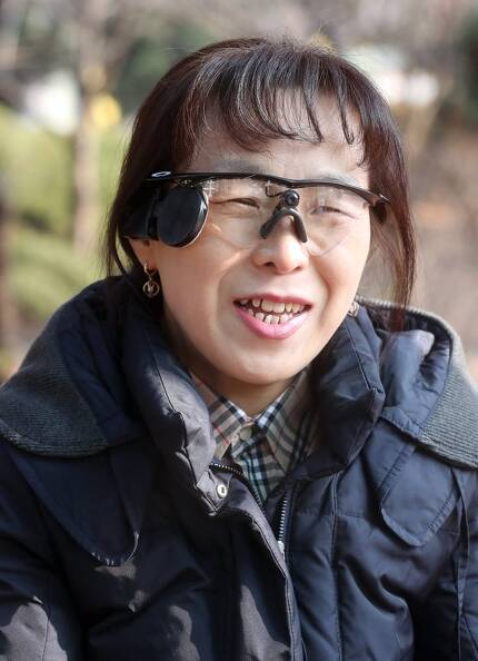 국내 첫 인공망막 이식환자 이화정씨. 안경 가운데 작은 카메라가 달려있다. 오른쪽 검정색 플라스틱 장치는 외부송신안테나인데 망막의 백금칩으로 데이터를 보낸다. [최정동 기자]