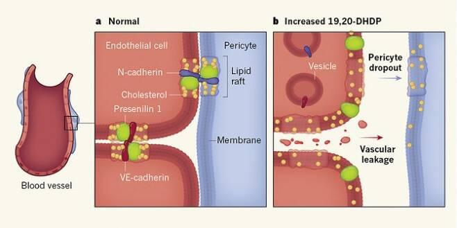 망막에 산소와 영양을 공급하는 모세혈관의 벽은 내피세포(endothelial cell)와 이를 지지하는 주위세포(pericyte)로 이뤄져 있다(왼쪽). 정상 생쥐에서는 내피세포 사이와 내피세포와 주위세포가 지질뗏목(lipid raft)라는 구조에 의해 고정돼 있다(가운데). 그런데 당뇨병 모델 생쥐의 경우 DHA의 대사산물 가운데 하나인 19,20-DHDP의 농도가 높아져 지질뗏목 구조가 해체돼 주위세포가 떨어져 나가고 내피세포 사이가 벌어져 혈장이 샌다. 그 결과 당뇨망막병증으로 이어진다(오른쪽). - 네이처 제공