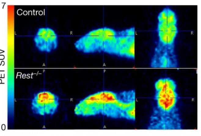 Rest 유전자가 고장난 생쥐(아래)는 정상 생쥐(위)에 비해 뇌의 전반적인 신경 활동이 더 활발하다. REST가 있어야 신경 활동이 통제를 받는다는 말이다. 빨간색으로 갈수록 활동이 크고 파란색으로 갈수록 작다. 네이처 제공