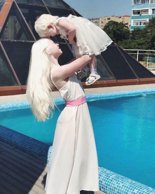 백색증에 걸린 카자흐스탄의 모델 아셀 칼라가노바아(왼쪽)가 동생 카밀라를 들어올리고 있다.