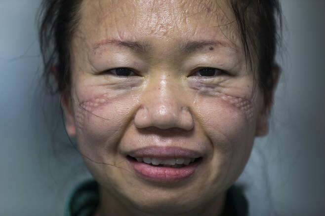 우한 진인탄병원에서 코로나19 환자를 돌봐온 간호사가 2월16일 마스크를 벗자 깊은 자국이 얼굴에 남아 있다.