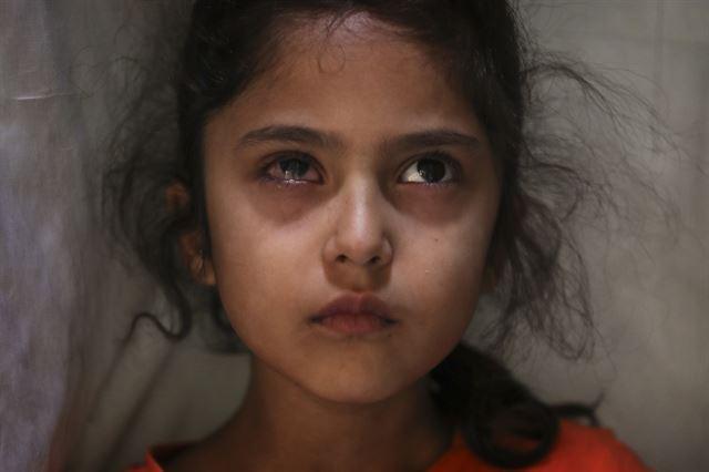 경찰이 쏜 고무총탄에 오른쪽을 맞은 카슈미르의 여섯 살 소녀. 2020 퓰리처상 피쳐 사진(Feature Photography) 부문 수상작 중 한 장면. AP 연합뉴스