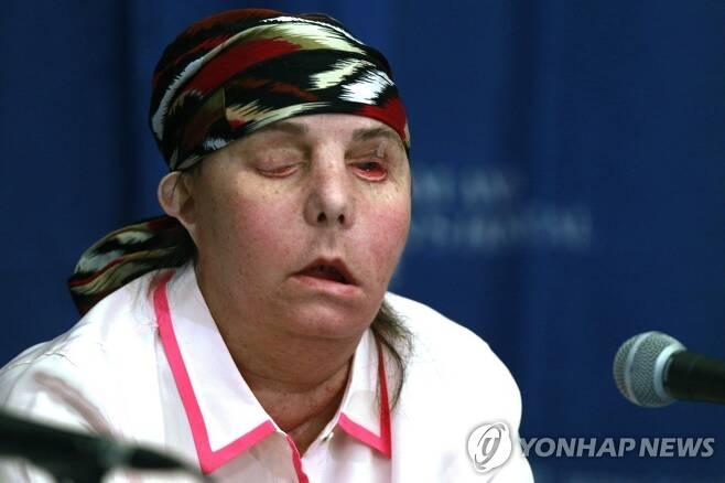 가정폭력에 얼굴잃은 미국 여성 카먼 블렌딘 탈러튼의 2013년 1차 수술 직후 모습 [AP=연합뉴스 자료사진]