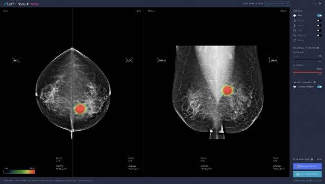 유방암 영상 분석에 사용된 '루닛 인사이트 MMG' 데모 스크린샷이다. 루닛 제공.