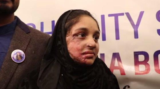 네팔의 한 소녀(사진)가 10대 소년을 거절했다는 이유로 괴롭힘을 당하다가 염산 테러 공격으로 얼굴에 큰 상처를 입었다. 이 사건 이후 네팔에서는 염산테러 가해자에 대한 분노가 들끓어 법이 강화되기에 이르렀다. [트위터]