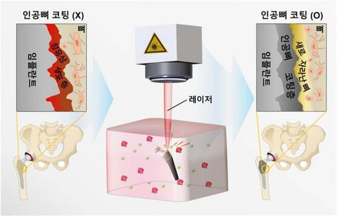 KIST 연구진이 레이저를 이용해 인골뼈를 세계 최고속 수준으로 구현한 방법과 이를 통해 형성된 코팅층의 구조를 보여주는 모식도 [한국과학기술연구원 제공. 재판매 및 Db 금지]