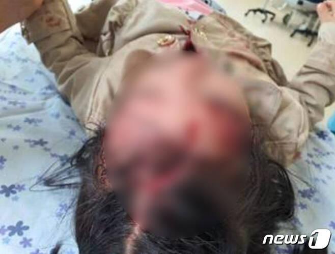 지난 4월 강진 가우도 집트랙을 이용하던 4살 여자 아이가 머리가 찢어지는 중상을 입었다.(강진군 홈페이지에 올라온 사진) /© 뉴스1
