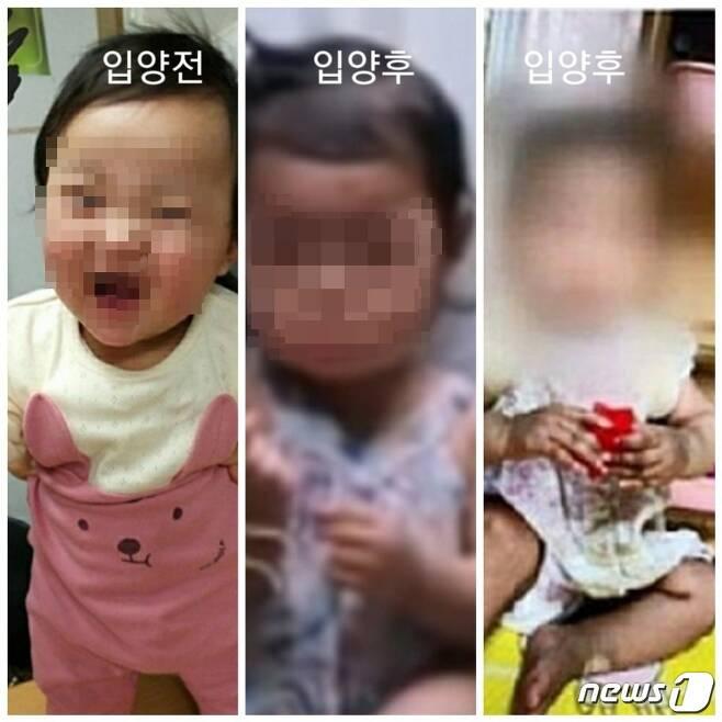 생후 16개월 영아가 사망한 사건과 관련, 입양 전(왼쪽)과 입양 후(가운데, 오른쪽) 모습이 담긴 사진이 공개됐다. 2020.11.17/뉴스1 © 뉴스1