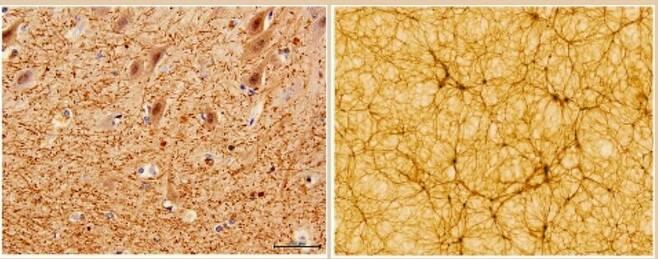 왼쪽은 전자현미경으로 본 40배율 소뇌 단면, 오른쪽은 가로·세로가 각각 3억광년인 우주 시뮬레이션 구조. 볼로냐대 제공