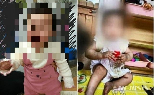 [서울=뉴시스] =서울 양천구에서 생후 16개월 여아가 사망한 사건과 관련해 아이가 입양가정에 보내지기 전(왼쪽)과 후(오른쪽)에 극명하게 달라진 모습이 담긴 사진이 공개되면서 논란이 되고 있다. 2020.11.17.