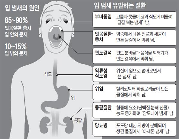 입 냄새는 각종 질환의 신호가 될 수 있다./사진=조선일보 DB