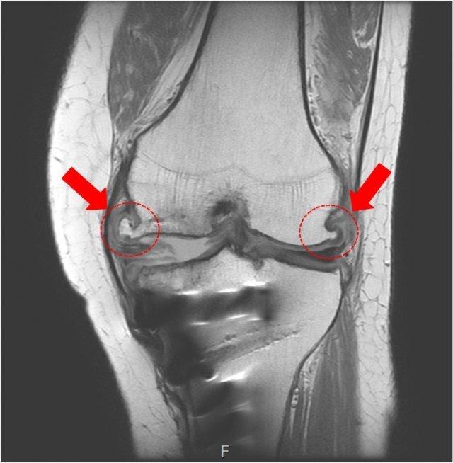 무리한 운동으로 무릎에 나타난 골극(뼈까시). 강남제이에스병원 제공.