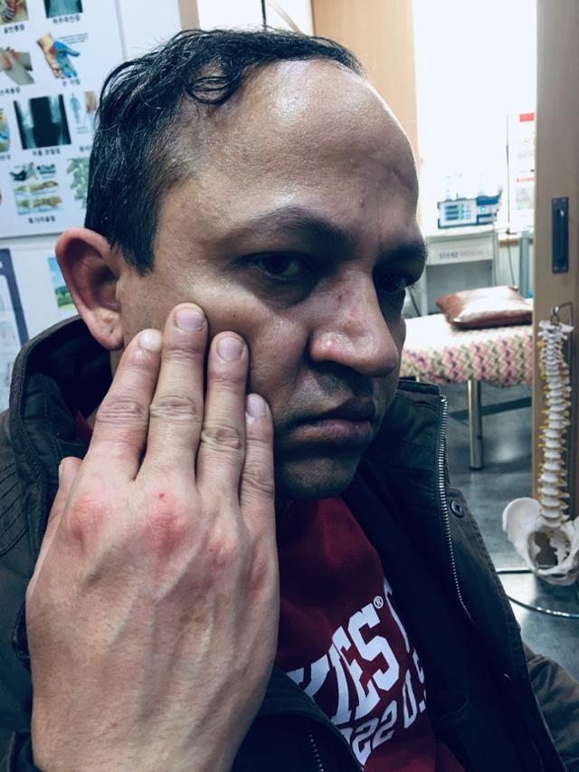 인도 국적 요리사 사지완씨가 2019년 사장으로 얼굴 부위 등을 폭행 당한 뒤 촬영한 사진. 사지완씨 제공