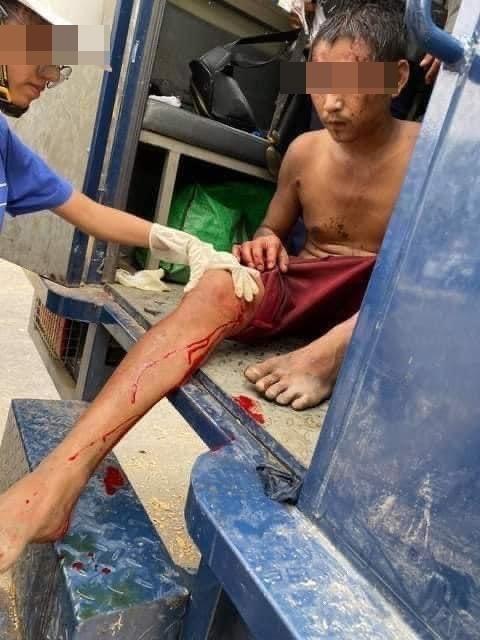만달레이 시위 도중 무릎에 총상을 입은 남성. [트위터 캡처. 재판매 및 DB 금지]