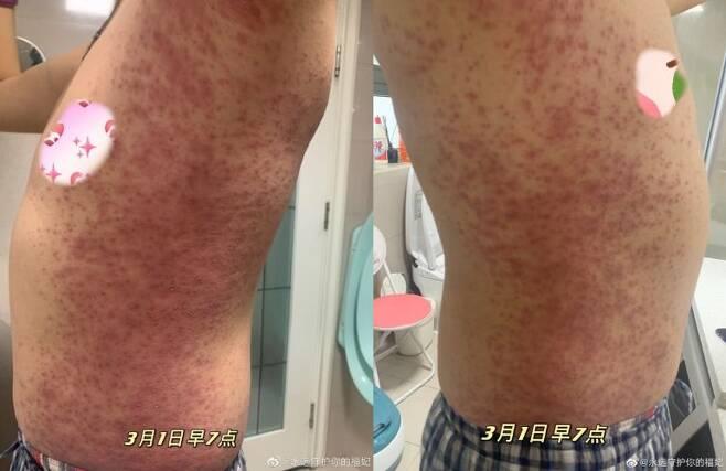 """""""시노팜 백신 맞은뒤 온몸에 붉은 반점"""" 백신 접종자의 온몸에 퍼진 붉은 반점 사진. 웨이보 캡처"""