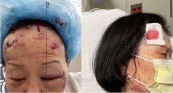 볼티모어에서 괴한 습격을 받은 여성들의 상처. 한 여성은 33바늘을  꿰맸다./만나24캡처