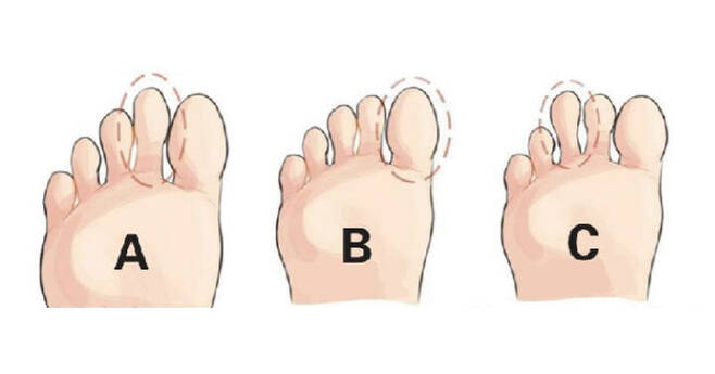 출처: 무슨 발가락이 가장 길어요?