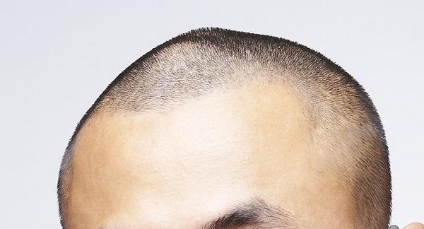 대머리는 정력이 세다는 말은 사실이 아니다./사진=게티이미지뱅크